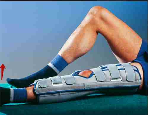 Восстановление после артроскопия коленного сустава стоимость эндопротеза коленного сустава киев